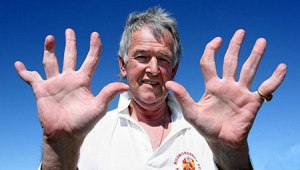 Something very much like this. This is David Morrison, by the way, He is a wicket keeper. Which is as British as it sounds.  image credit: http://metro.co.uk/2007/09/12/wicket-keeper-with-10-broken-fingers-107805/